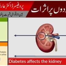 Diabetes Ka Eelaj | Sugar Kay Gurdon Per Asrat | Dr Arif Riyaz